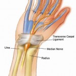 Advanced Hand Rehab Carpel Tunnel Syndrome